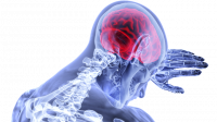 Kenali Gejala Pendarahan Otak Seperti Dialami Tukul Arwana
